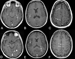 Study Finds Lesions in Some MRI's After Mild Concussions - May Provide Better Targeting of Treatment